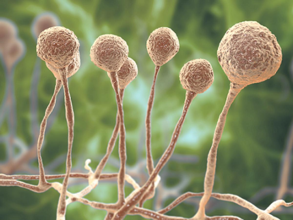 Mukormykose wird durch einen Schimmelpilz aus der Familie der Zygomyceten verursacht